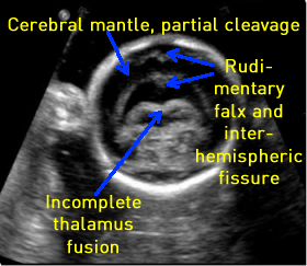 fetal cerebral mantle, partial cleavage, and incomplete thalamus fusion