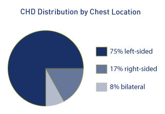 Distribution by location of CDH is 75% left-sided, 17% right-sided, and 8% bilateral