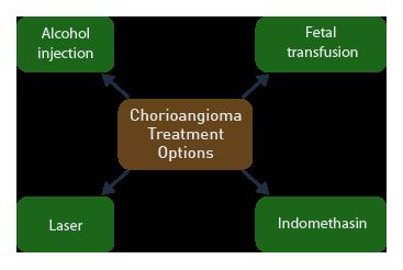 Treatment of Fetal Chorioangioma