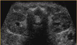 Kidney2b