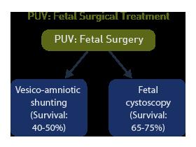 fetal cystoscopy