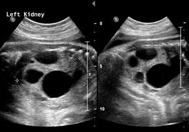 fetal Multicystic dysplastic changes