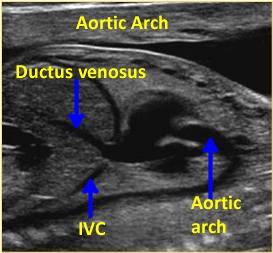 longitudinal or para- sagittal position in the mid-fetal heart