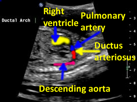 "shape of the fetal ductal arch is often compared to a ""hockey stick"""