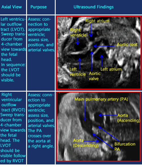 ultrasound of right ventricular overflowof fetal heart