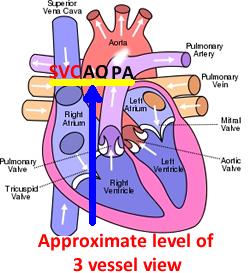 fetal life the pulmonary artery