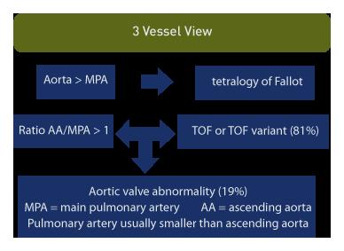 Tetralogy Of Fallot Imaging Considerations Ob Images