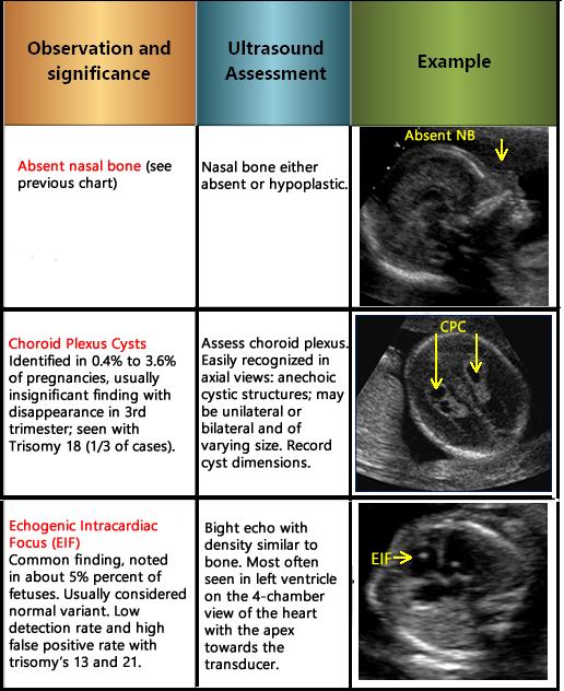 Choroid Plexus Cysts (CPCs)