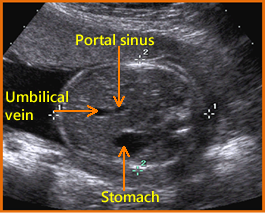 fetal abdomen should not be compressed during image acquisition