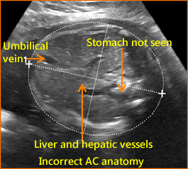 fetal rib images are not symmetrical