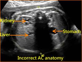 fetal's umbilical vein or portal sinus