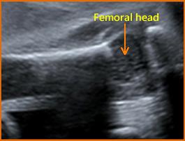 biometry of femoral head