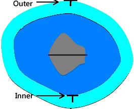 outer edge of the fetal calvaria