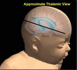 defining abnormal brain anatomy