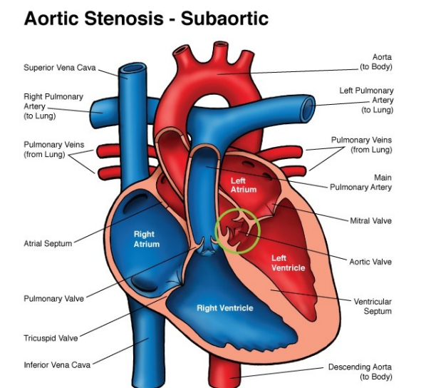 Aortic Stenosis In Children: Post-delivery Graphic Anatomy: Valvar AS, And Subaortic