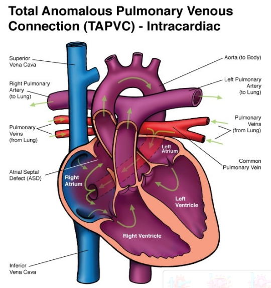 Post Delivery Graphic Anatomy Tapvr Or Tapvc Ob Images