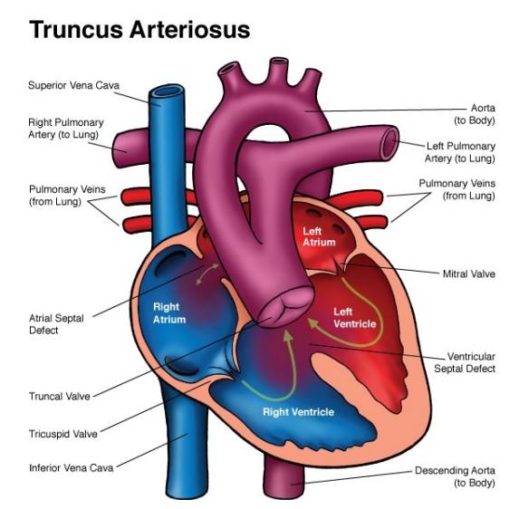 Post-delivery graphic anatomy: Truncus arteriosus