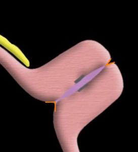 external cervical os