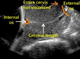 Visualize the entire cervix